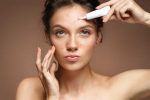 How to get rid of pimples fast at home